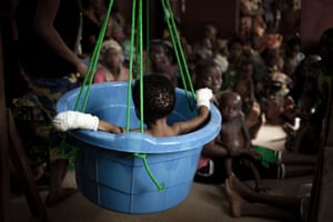 A malnourished child is weighed while other children wait their turn in the Bangui paediatric complex.