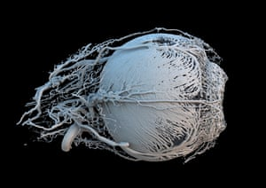 Produced from CT scans and 3D printing, this is a model of the blood vessels of the eye of a mini-pig. A small as 0.02 mm in diameter, the vessels are vital in the delivery of nutrients to muscles which change the size of the pupil, constricting or dilating its size to regulate how much light enters the eye.