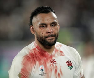 Bloodied England No 8 Billy Vunipola looks dejected immediately after the final loss against the Springboks.