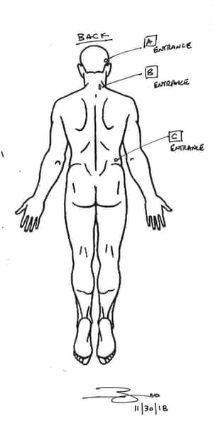 The private autopsy documented three entry wounds from behind on Bradford's body.