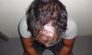 An injured asylum seeker on Nauru. Peter Dutton says: 'It is important to recognise of the 2,000 reports many could include a complaint about food ...'