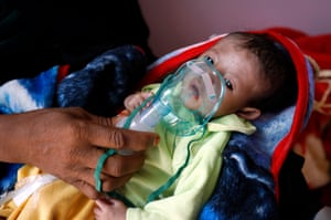 Sana'a, Yemen. A child receives treatment at a hospital. According to reports, more than 85,000 under-fives in the country may have died of acute malnutrition and diseases since the Saudi-led coalition launched military operations against the Houthis in 2015
