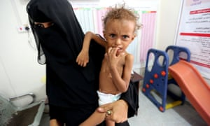 Ferial Elias, two, is held by her mother at a malnutrition ward in Hodeidah