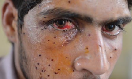 A Kashmiri protester who was shot by Indian security forces in Srinagar, in July 2016.
