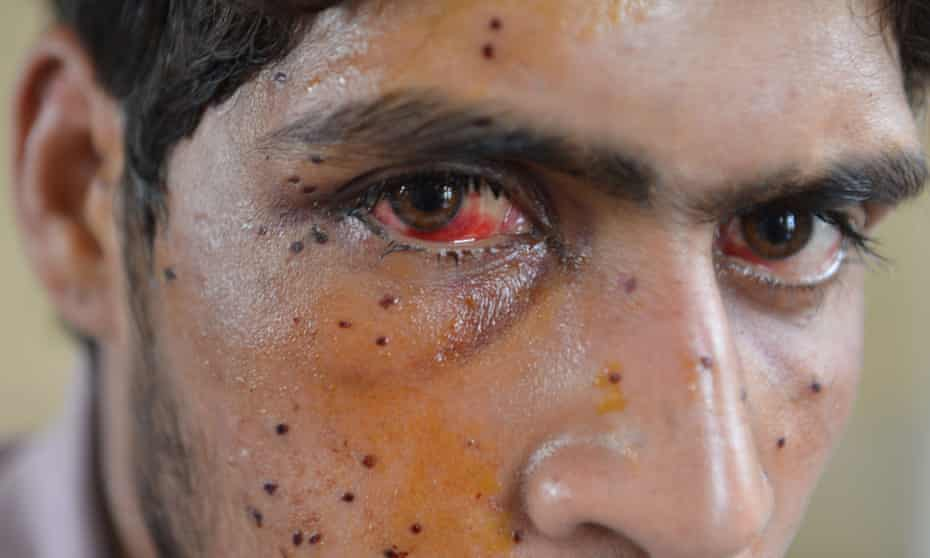A Kashmiri youth with an eye injury sustained after he was hit by pellets fired by Indian security forces during a protest in Srinagar.