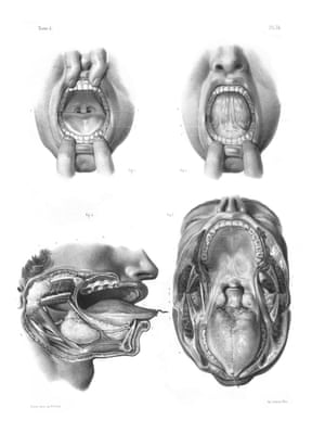 Hole picture … more illustrations from the Traité Complet showing the anatomy of the oral cavity in fine detail.