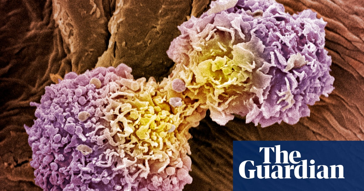 Scientists develop 10-minute universal cancer test