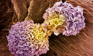 Coloured scanning electron micrograph of dividing breast cancer cells.