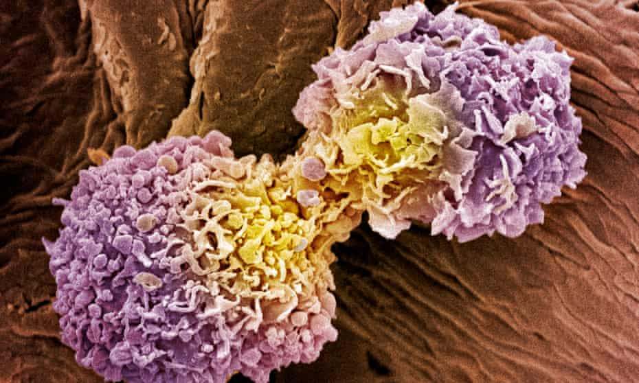 A coloured scanning electron micrograph of dividing breast cancer cells.
