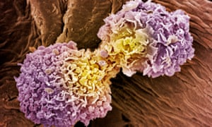Coloured scanning electron micrograph (SEM) of dividing breast cancer cells.