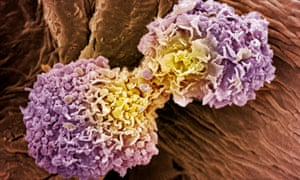 Breast cancer cells. 'Data trawls unexpectedly revealed that patients taking metformin for type 2 diabetes had less chance of developing cancer. No one knows why, but it opened a whole new area of cancer research.'