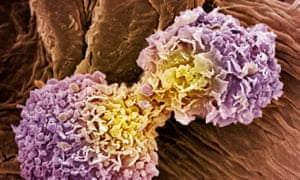 Breast cancer cells: AI-based techniques aim to reduce overdiagnosis and false positives
