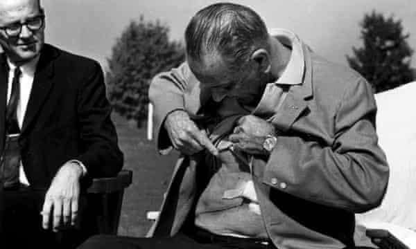 Johnson displays the incision from gall bladder surgery and kidney stone removal, in Washington in 1965.