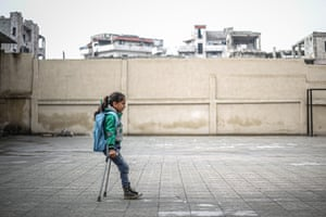 Idlib, Syria Fatima Ahmed al-Mustafa, who lost her left leg in an attack by the Assad regime, walks using crutches to her school. Fatima, who moved with her family to a safer zone, walks 3km to school every day to continue her education