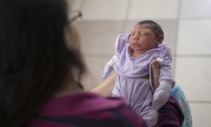 Baby born with microcephaly in a Brazilian hospital.
