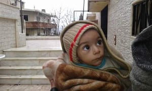 Image of a young child supplied by activists in the Syrian town of Madaya