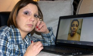 Helen, looking at an image of herself after an attack in Behind Closed Doors