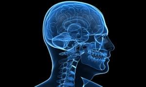 human brain. Image shot 2010. Exact date unknown.<br>C37NWD human brain. Image shot 2010. Exact date unknown.
