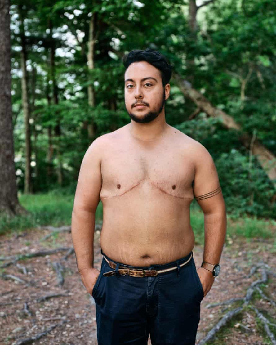 Jake Vargas, a student in Lincoln, Nebraska, standing, naked from the waist up, in front of trees
