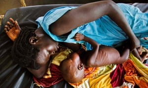 A mother breastfeeding a child with acute malnutrition at an MSF clinic in Aweil, in Northern Bahr el Ghazal state.