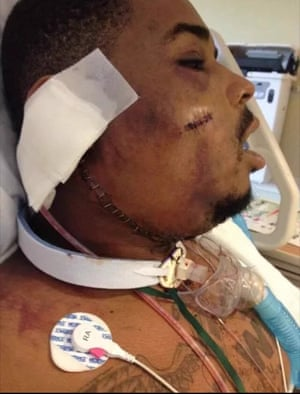Keith Davis after being shot in the face by Baltimore police.