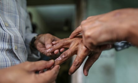 A doctor examines a leprosy patient in Mumbai. More than half of all new leprosy cases each year are diagnosed in India, according to the World Health Organisation.