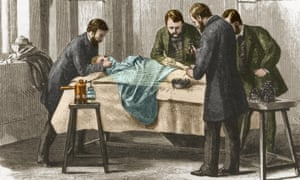 Joseph Lister's antiseptic spray in action during surgery.