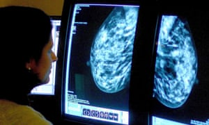 Breast cancer care quality threatened by lack of specialist