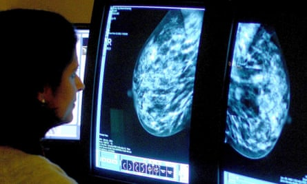 A consultant looks at the results of a mammogram.