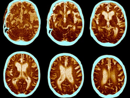 CT scans of a brain showing the progress of Alzheimer's disease. Atrophy is shown by enlarged ventricles (white areas at the centre).
