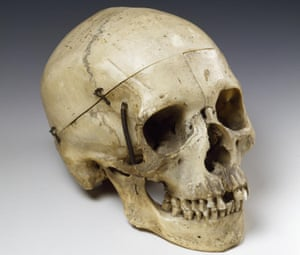 When Sarah Bernhardt played Hamlet, she used this real skull, a gift from Victor Hugo.