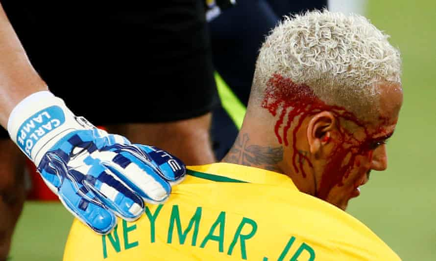 Blood pours from Neymar's facial wound.