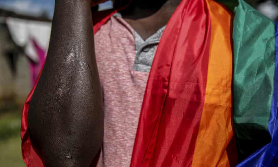 A gay Ugandan shows the scars he suffered in an attack in May, outside the house he shares with other LGBT+ people in Nairobi, Kenya.