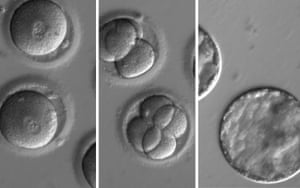 This sequence of images shows the development of embryos after injection of a gene-correcting enzyme and sperm from a donor with a genetic mutation known to cause hypertrophic cardiomyopathy.