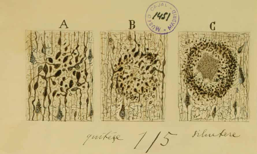 Formation of Alzeimer Plaque by Santiago Ramón y Cajal.