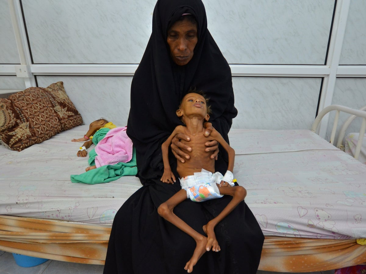 Famine in Yemen could become one of worst in living memory, UN says | World  news | The Guardian