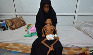 A mother holds her six-year-old son at a hospital in the Red Sea port city of Hodeida.