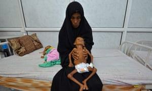 Image result for Starving Children of Yemen