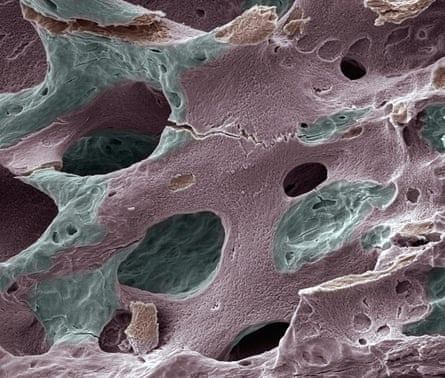 An electron micrograph image of a of human bone with osteoporosis.