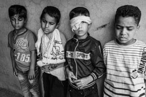 Children injured in a landmine explosion in Iraq in 2016