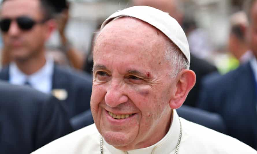 Pope Francis, showing a bruise around his left eye and eyebrow caused by an accidental hit against the popemobile's window glass.