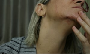 A Brazilian reporter who was roughed up by Bolsonaro supporters in Recife