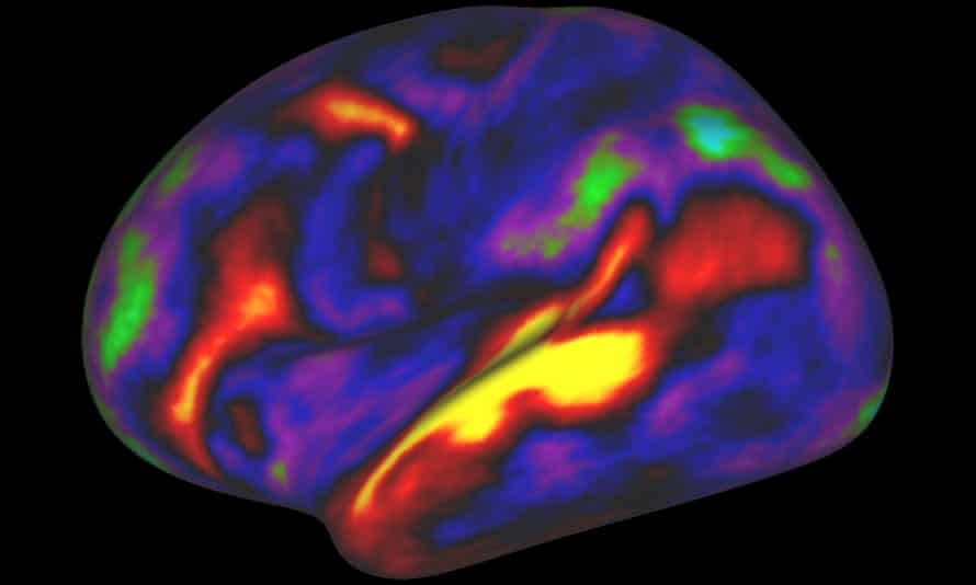 The image shows the pattern of brain activation (red, yellow) and deactivation (blue, green) in the brain's left hemisphere when listening to stories while in an MRI scanner.