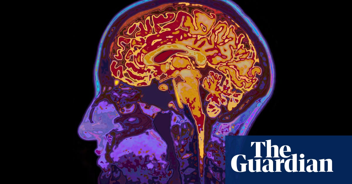 Four unhelpful myths about dementia: 'Our bleak view is often unjustified'