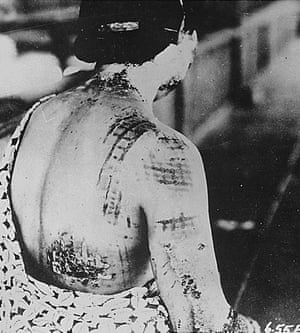 A Japanese woman's skin burned in a pattern corresponding to the dark portions of a kimono she wore at the time of the atomic bomb explosion in 1945.
