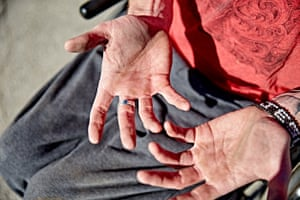 Joseph Dewey's hands after strenuous exercise on his wheelchair.