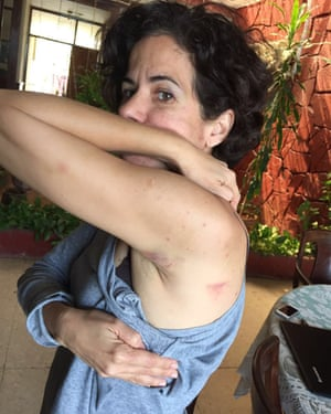 Ailer González, a member of the Forum for Rights and Freedom, a political dissident in Cuba shows off her bruise.