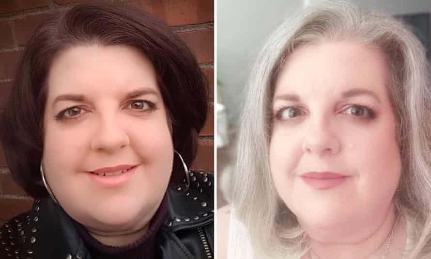 Caroline Marks before and after