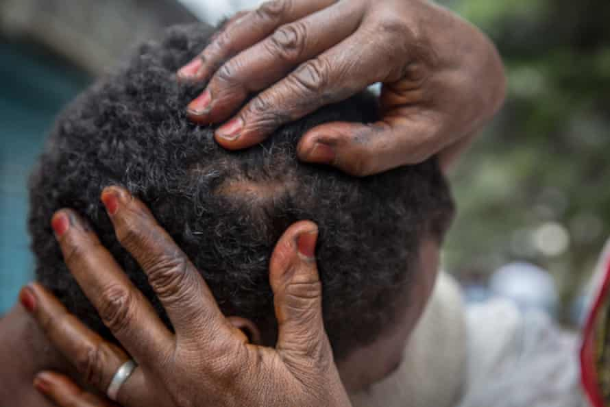 A victim shows a scar from his time with smugglers in Libya.