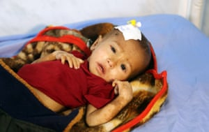 A malnourished child receives treatment at a hospital in Hodeidah, Yemen